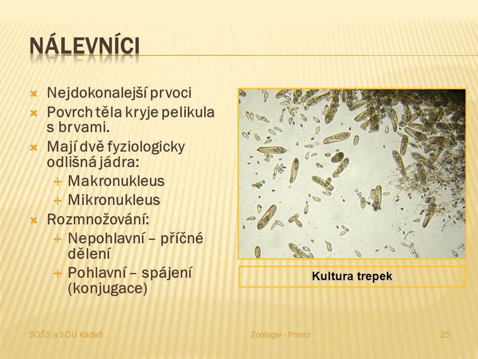 Nálevníci Nejdokonalejší prvoci Povrch těla kryje pelikula s brvami.
