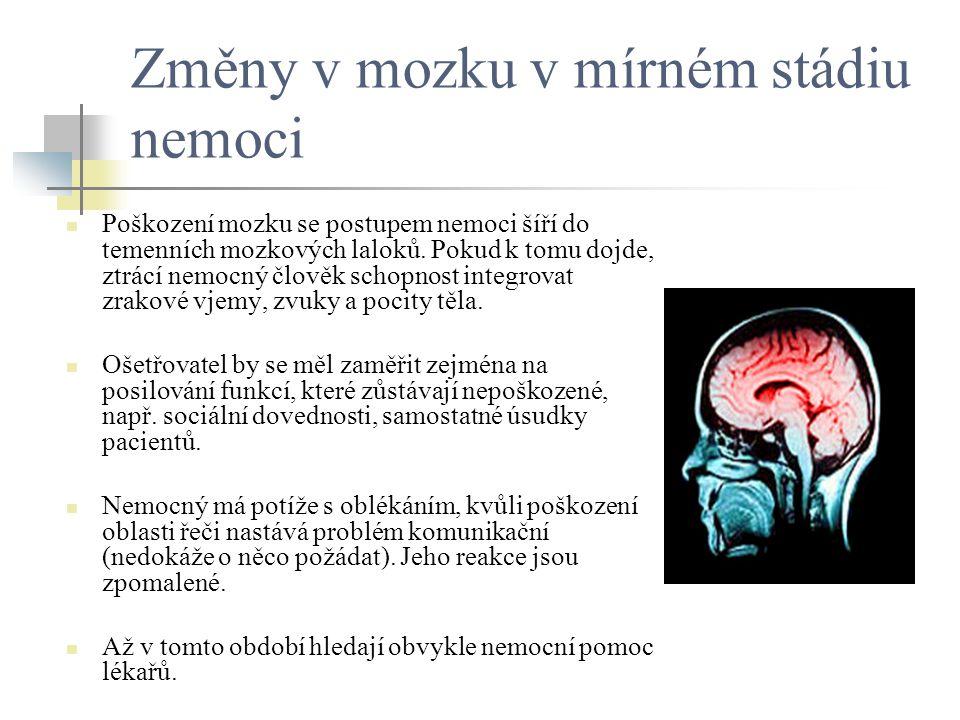 Změny v mozku v mírném stádiu nemoci