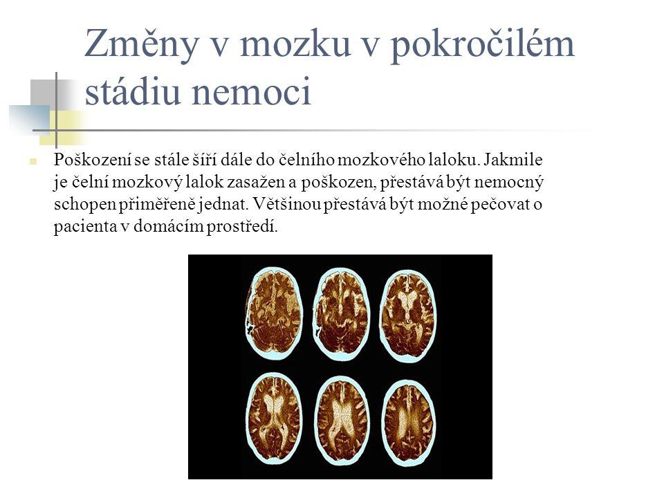 Změny v mozku v pokročilém stádiu nemoci