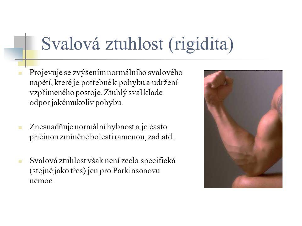 Svalová ztuhlost (rigidita)