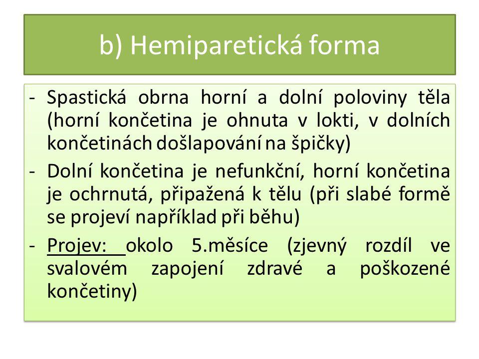 b) Hemiparetická forma
