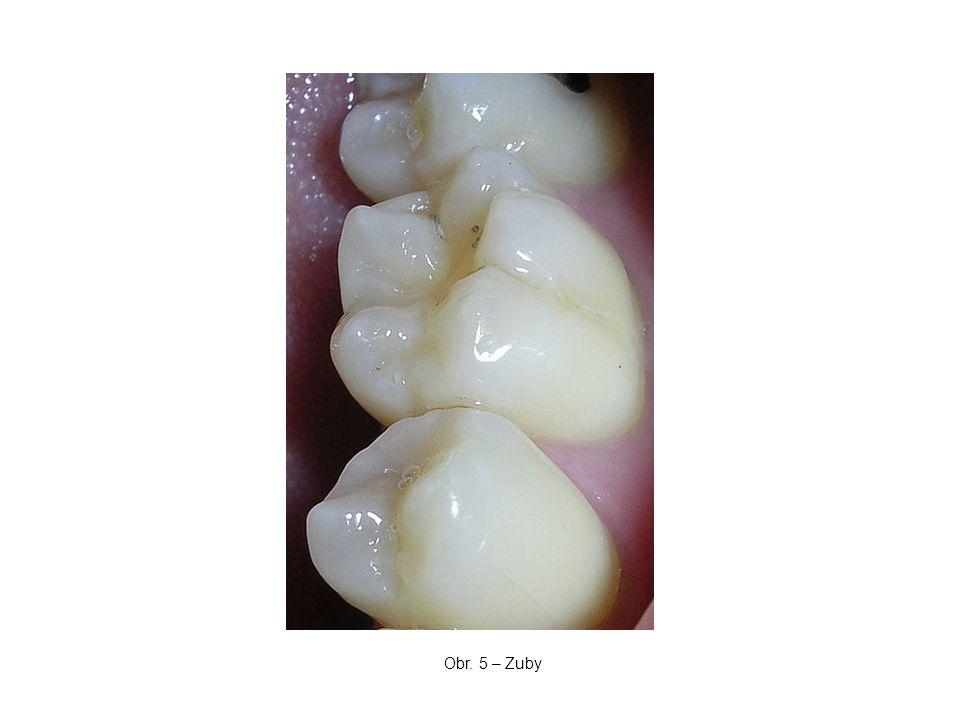 Obr. 5 – Zuby