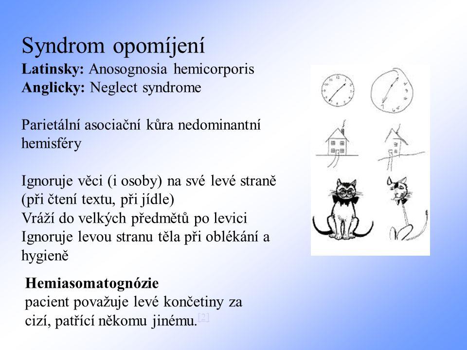 Syndrom opomíjení Latinsky: Anosognosia hemicorporis Anglicky: Neglect syndrome