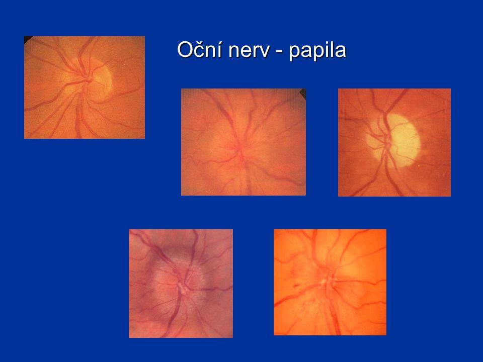 Oční nerv - papila Norma, intraokulární neuritida s následnou atrofií, edém terče zrakového nervu, glaukomová atrofie.