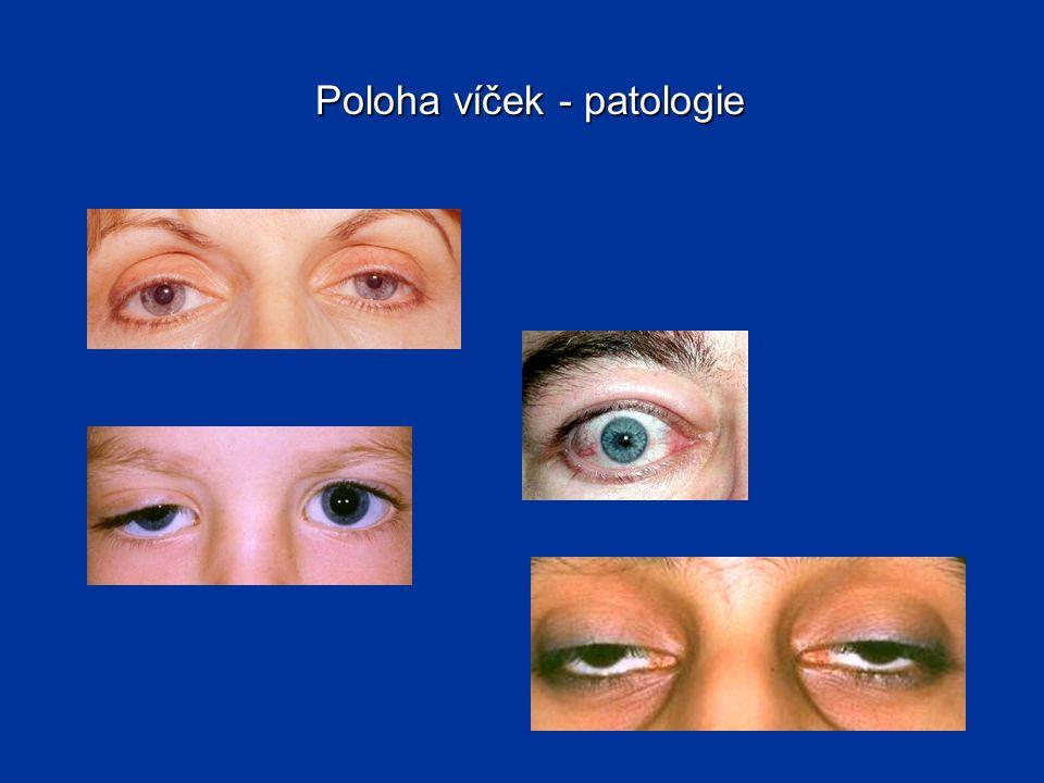 Poloha víček - patologie