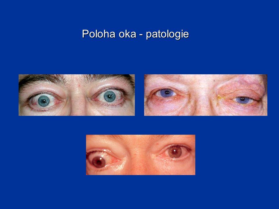 Poloha oka - patologie