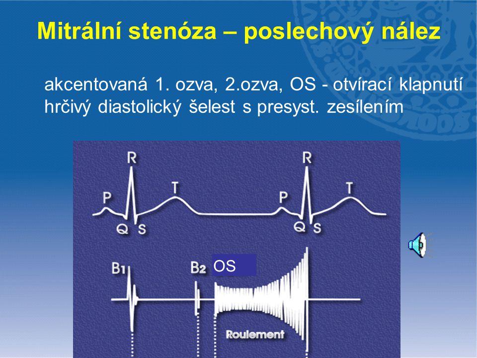 Mitrální stenóza – poslechový nález