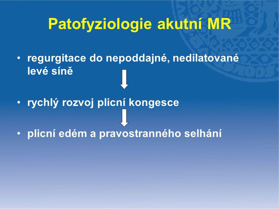 Patofyziologie akutní MR