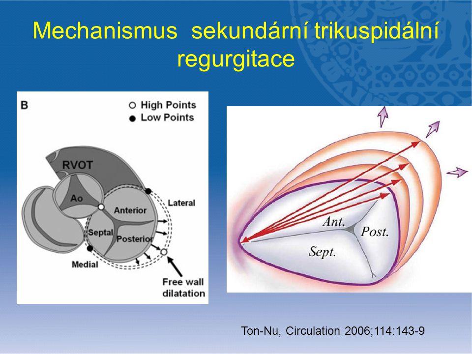 Mechanismus sekundární trikuspidální regurgitace