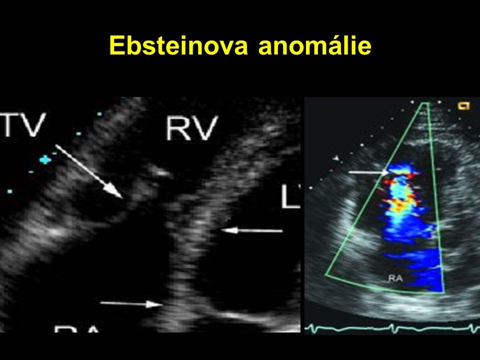 Ebsteinova anomálie