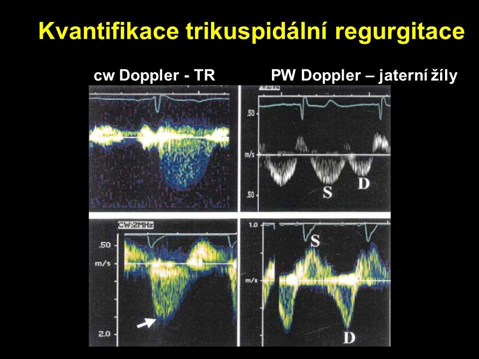 Kvantifikace trikuspidální regurgitace