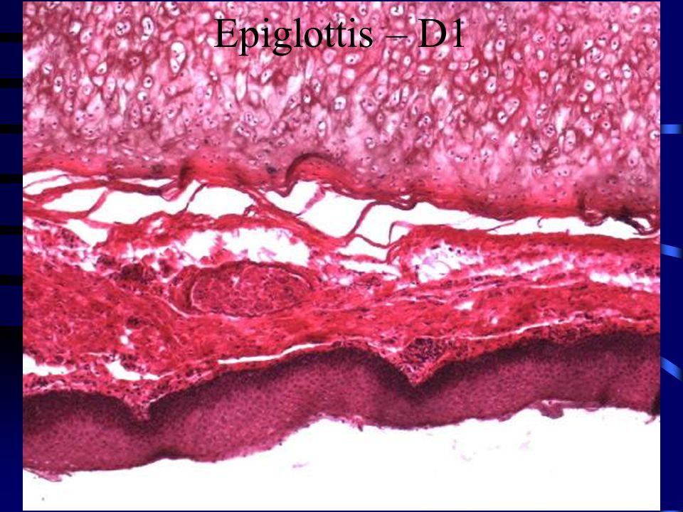 Epiglottis – D1