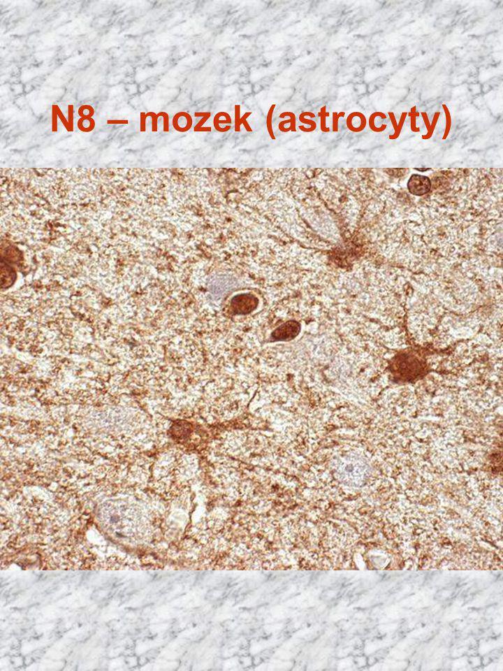 N8 – mozek (astrocyty) Cajal x 400