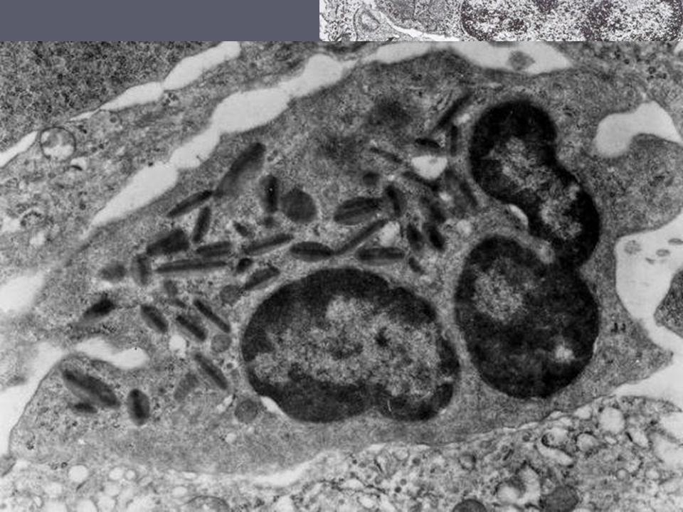 Eosinofily