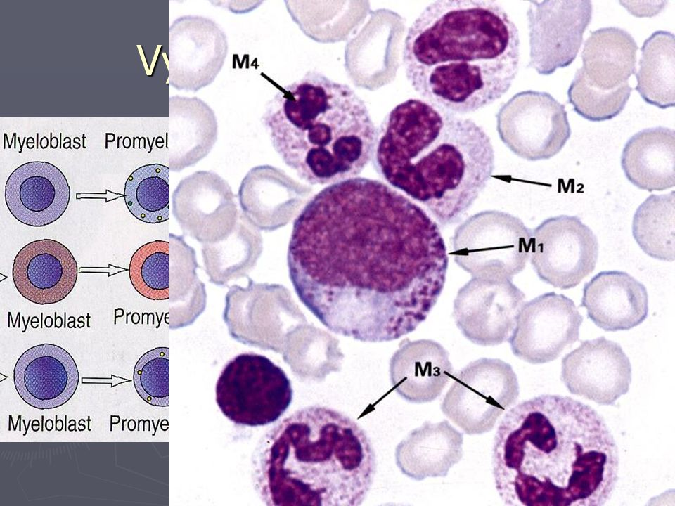 Vyzrávání granulocytů