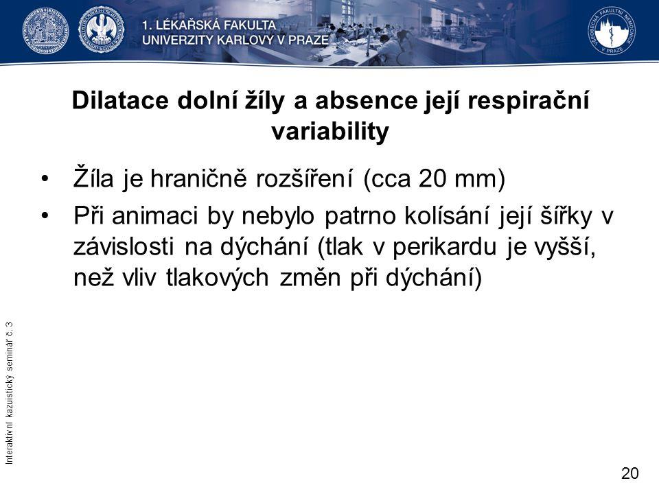 Dilatace dolní žíly a absence její respirační variability