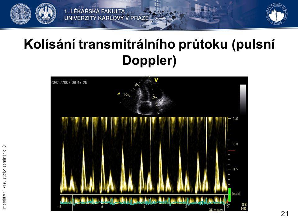 Kolísání transmitrálního průtoku (pulsní Doppler)