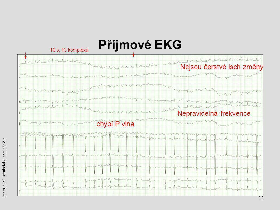 Příjmové EKG Nejsou čerstvé isch změny Nepravidelná frekvence
