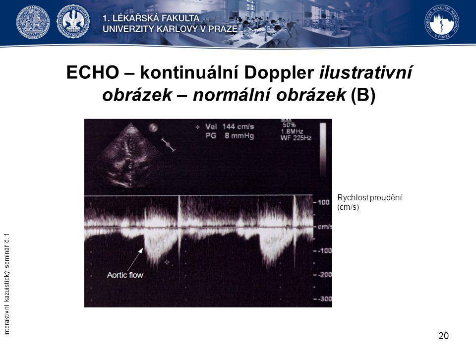 ECHO – kontinuální Doppler ilustrativní obrázek – normální obrázek (B)