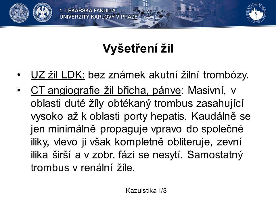 Vyšetření žil UZ žil LDK: bez známek akutní žilní trombózy.