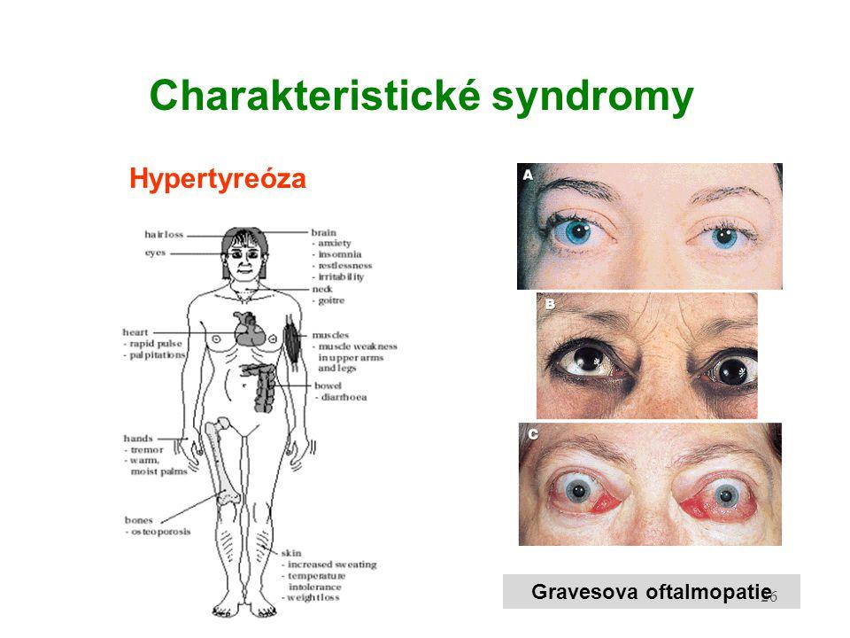 Charakteristické syndromy Gravesova oftalmopatie