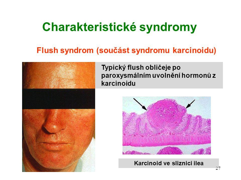 Charakteristické syndromy Karcinoid ve sliznici ilea