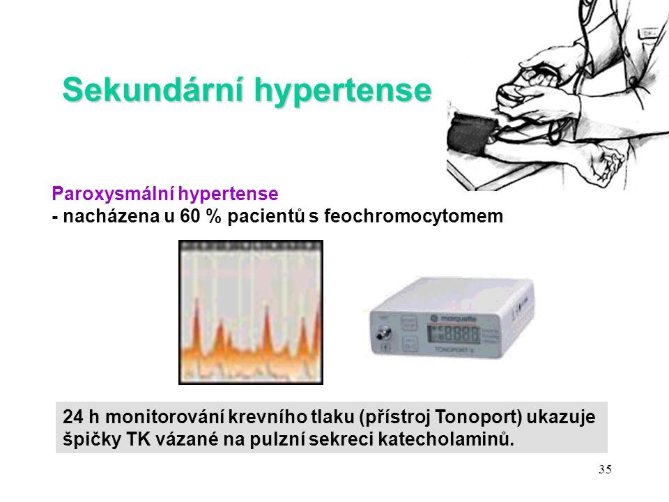 Sekundární hypertense