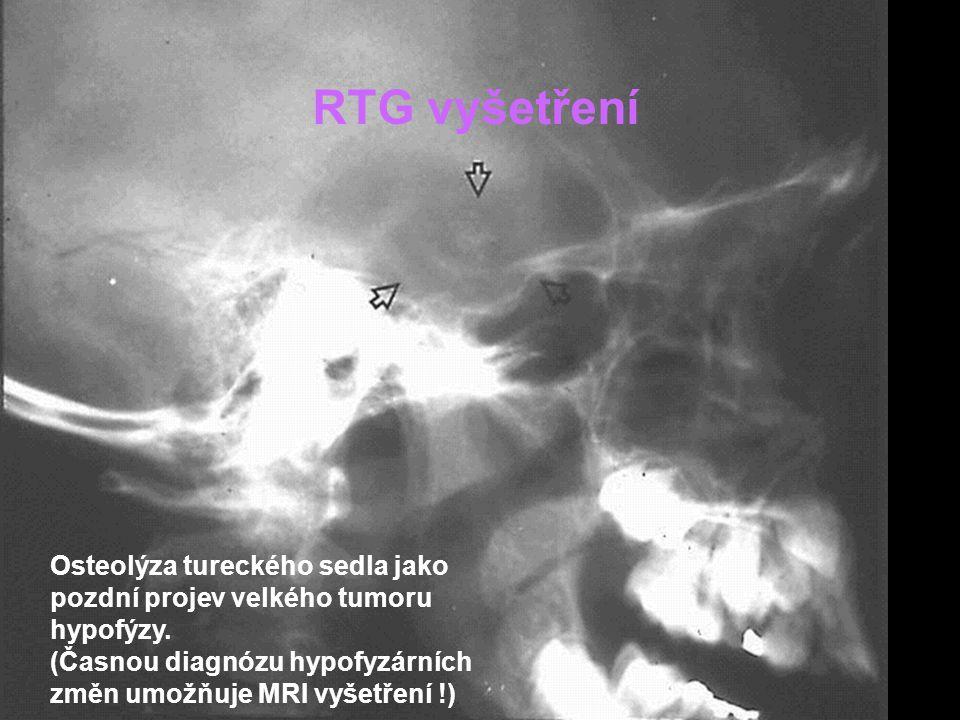 RTG vyšetření Osteolýza tureckého sedla jako pozdní projev velkého tumoru hypofýzy.