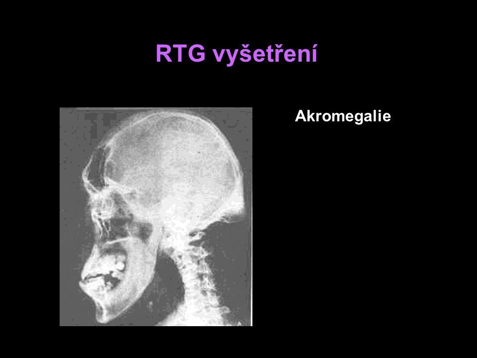 RTG vyšetření Akromegalie