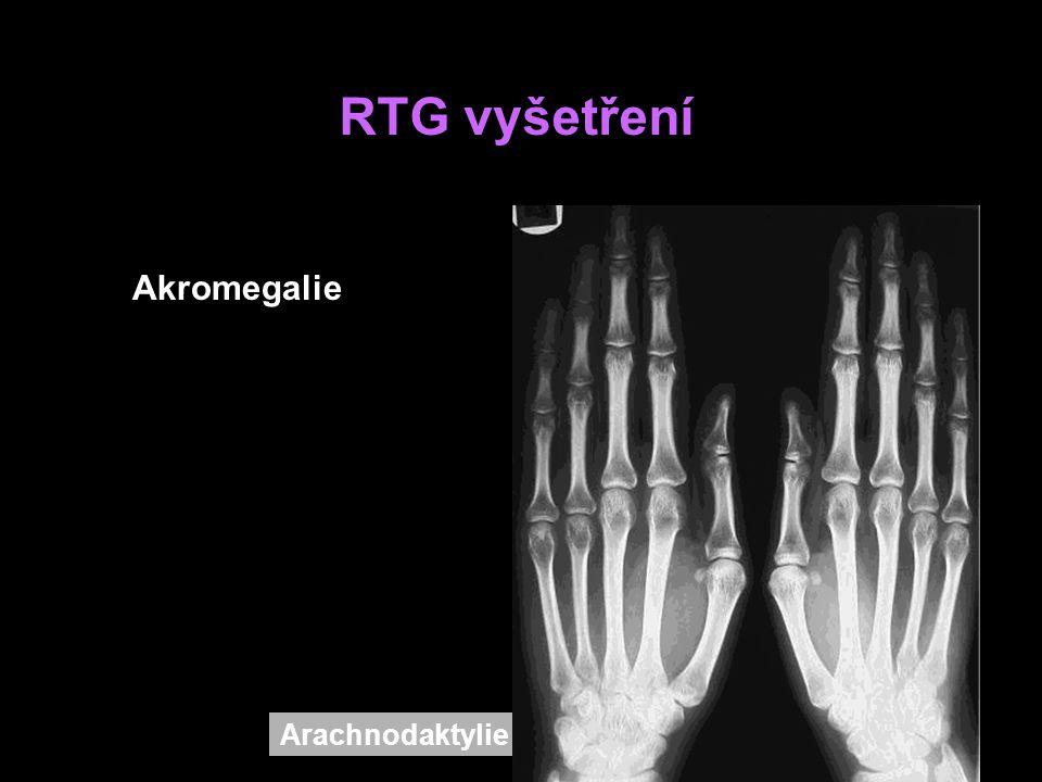 RTG vyšetření Akromegalie Arachnodaktylie