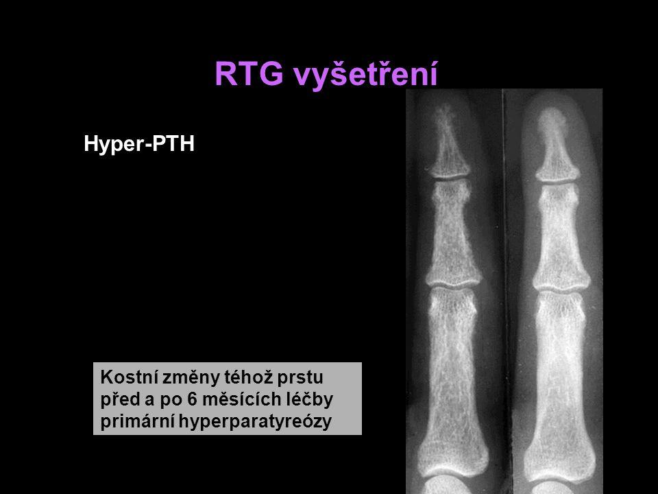 RTG vyšetření Hyper-PTH