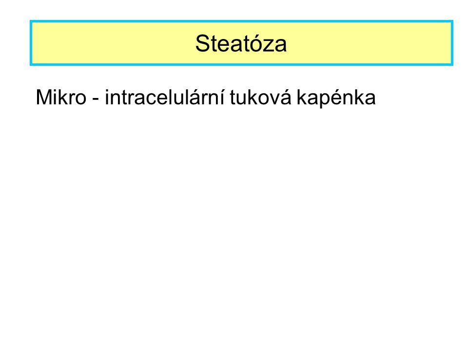 Steatóza Mikro - intracelulární tuková kapénka
