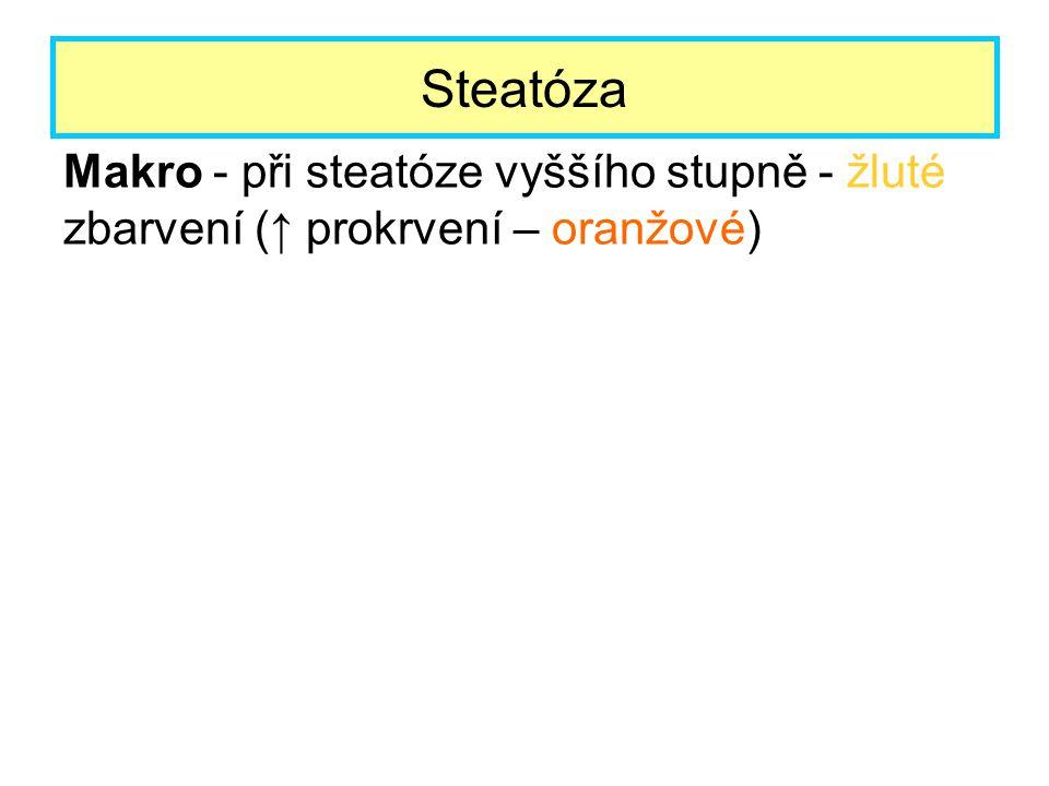 Steatóza Makro - při steatóze vyššího stupně - žluté zbarvení (↑ prokrvení – oranžové)