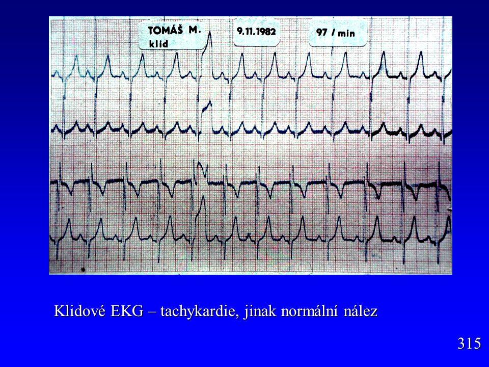 Klidové EKG – tachykardie, jinak normální nález