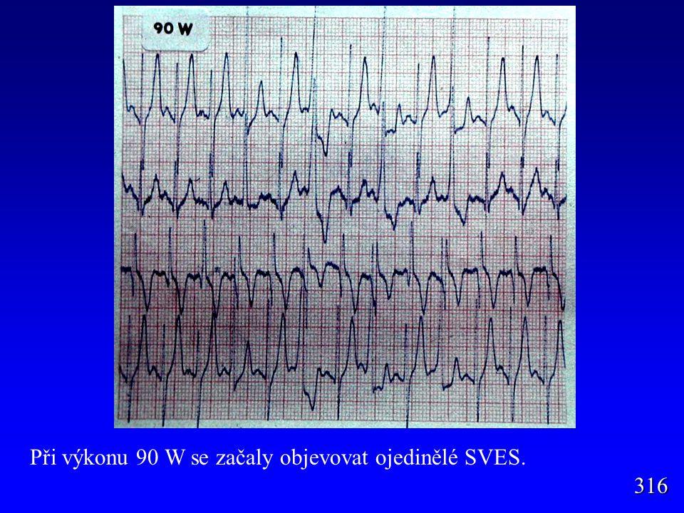 Při výkonu 90 W se začaly objevovat ojedinělé SVES.