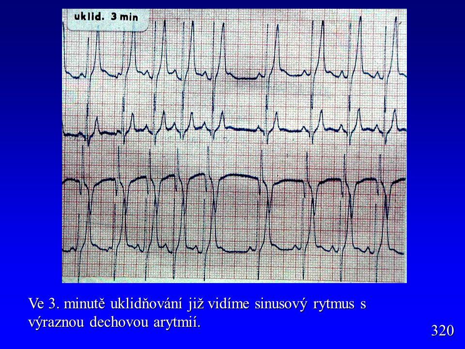 Ve 3. minutě uklidňování již vidíme sinusový rytmus s výraznou dechovou arytmií.