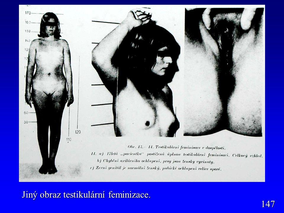 Jiný obraz testikulární feminizace.