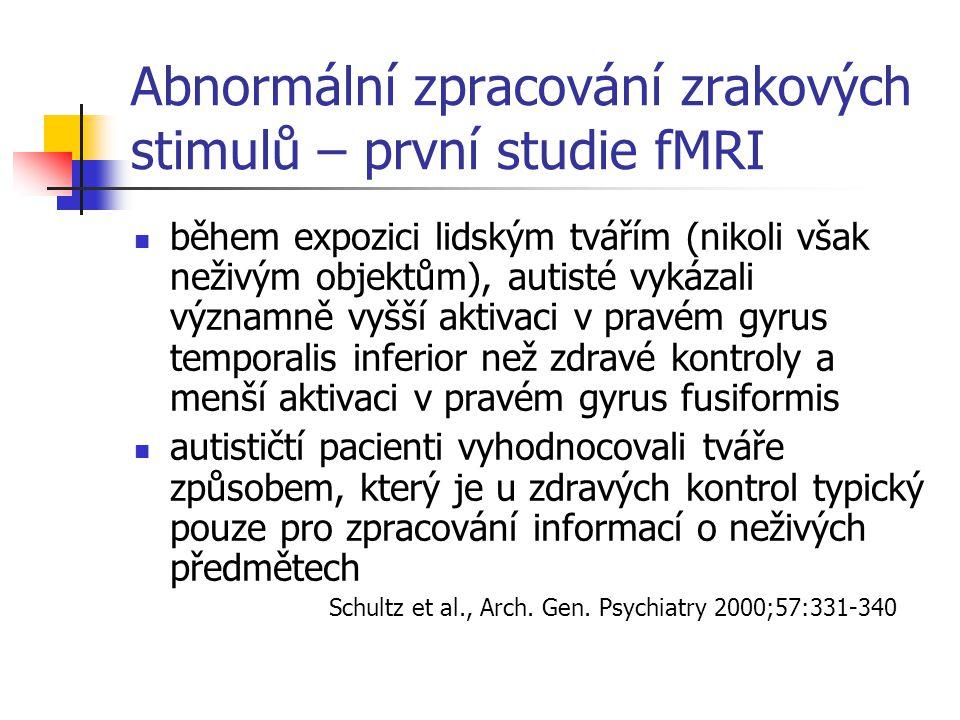 Abnormální zpracování zrakových stimulů – první studie fMRI