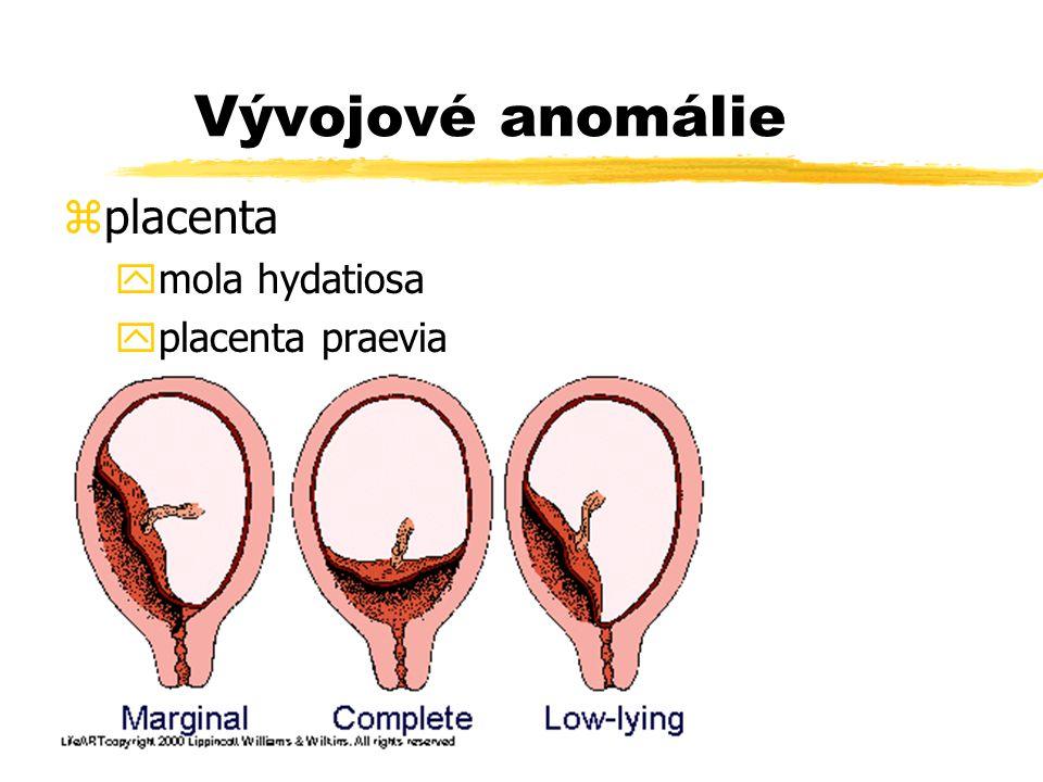 Vývojové anomálie placenta pupečník množství plodové vody