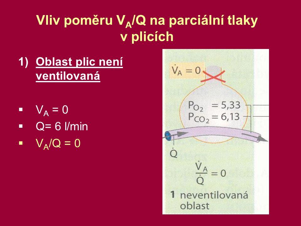 Vliv poměru VA/Q na parciální tlaky v plicích