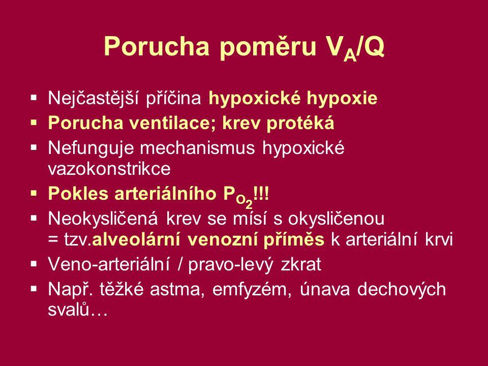 Porucha poměru VA/Q Nejčastější příčina hypoxické hypoxie