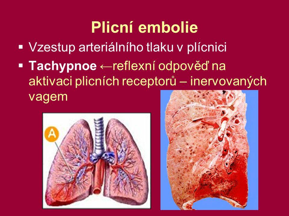 Plicní embolie Vzestup arteriálního tlaku v plícnici