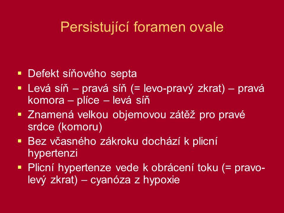 Persistující foramen ovale