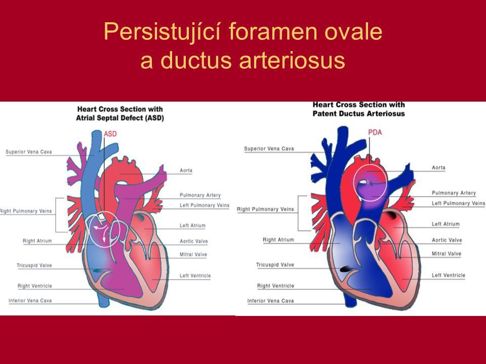 Persistující foramen ovale a ductus arteriosus