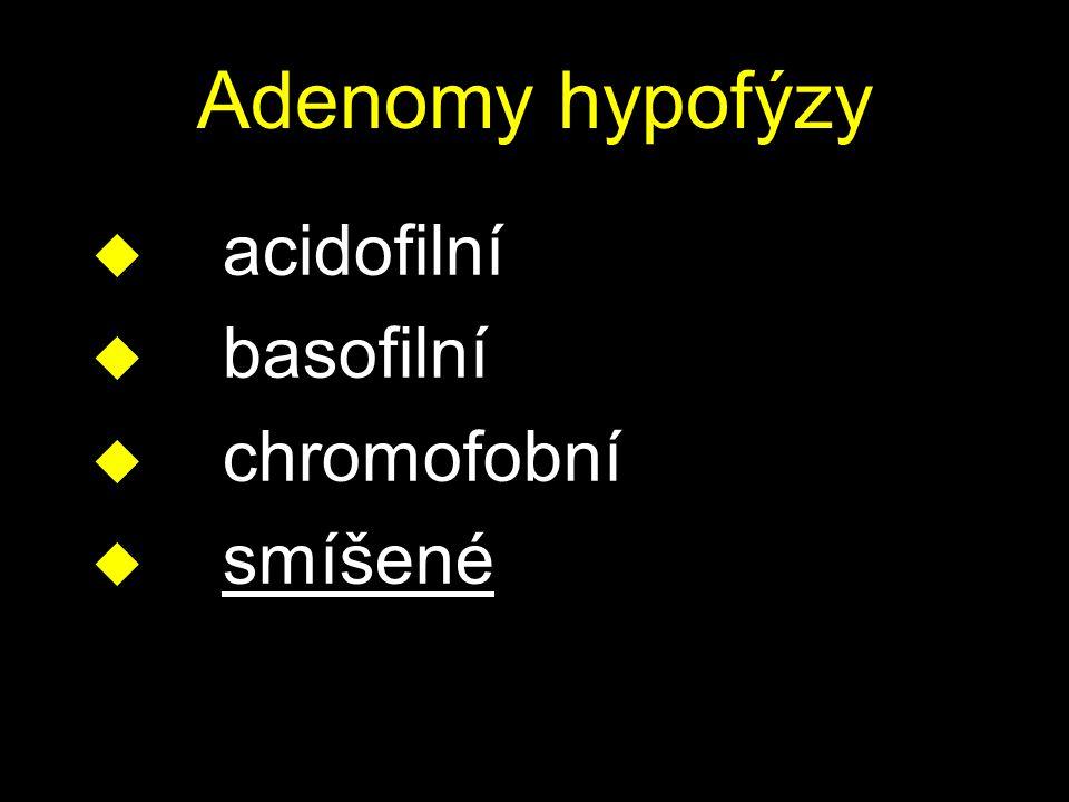 Adenomy hypofýzy acidofilní basofilní chromofobní smíšené