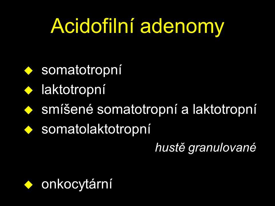 Acidofilní adenomy somatotropní laktotropní