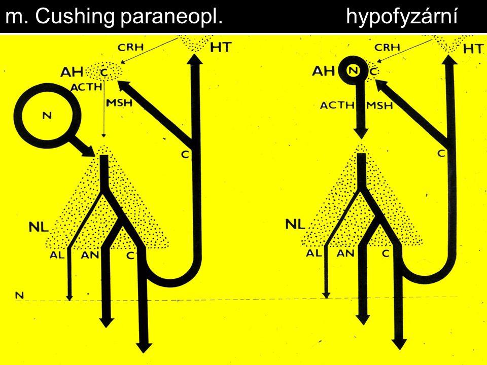 m. Cushing paraneopl. hypofyzární
