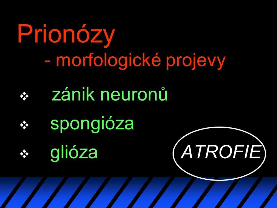 Prionózy - morfologické projevy