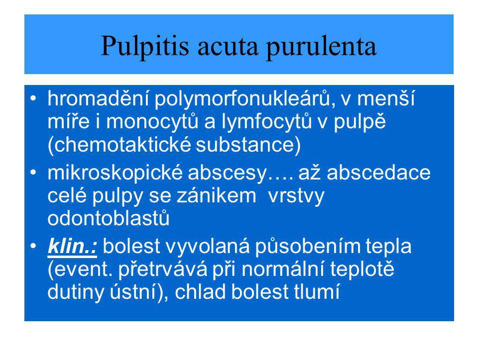 Pulpitis acuta purulenta