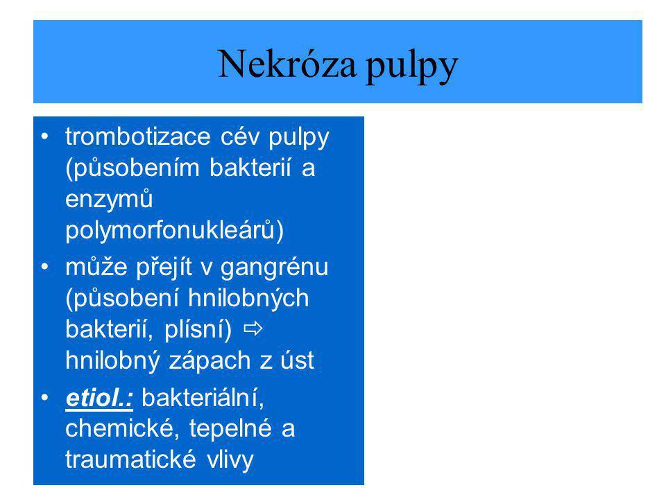 Nekróza pulpy trombotizace cév pulpy (působením bakterií a enzymů polymorfonukleárů)